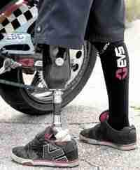 Ryan Suchanek: Stunter on prosthetics